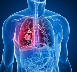 Lungenkrebs: Verständnis von MAPK könnte nutzen, therapeutische Ansätze zu entwickeln