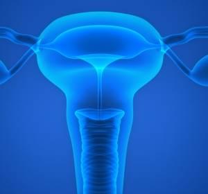 Leitlinienprogramm Onkologie legt S3-Leitlinie zum Endometriumkarzinom vor