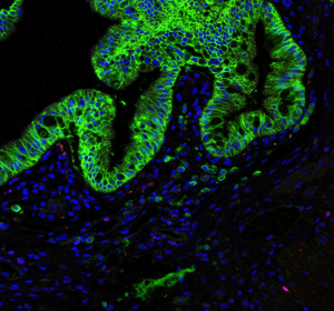Stammzellnische für 10 Milliarden Dickdarmzellen pro Tag