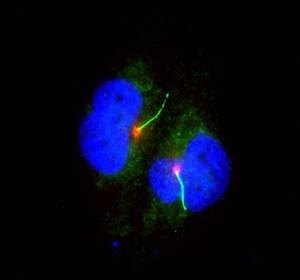 Verlust von Zellhärchen führt zu Melanom