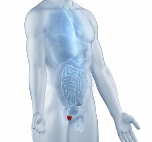 Phase-III-Studie PROSPER: Enzalutamid bei Männern mit nicht metastasiertem CRPC
