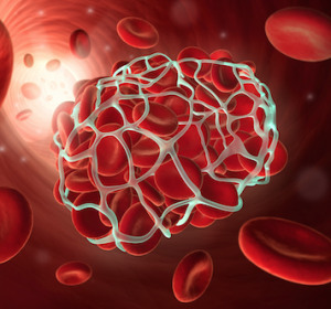 Neues Modell für die Voraussage einer tiefen Venenthrombose oder Lungenembolie bei Krebserkrankung
