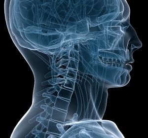 Lokal fortgeschrittenes Plattenepithelkarzinom im Kopf-Hals-Bereich: Im Zweifel RT mit Cetuximab