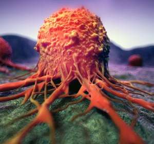 Lungen-+und+Ovarialkarzinom%3A+Zulassungserweiterungen+verbessern+Therapie