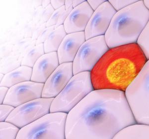 Melanom: Zielgerichtete Therapie und Immun-Checkpoint-Blockade verbessern Behandlungsoptionen