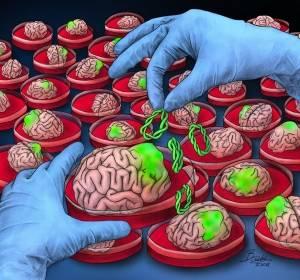 Ein Gehirntumor aus der Petrischale