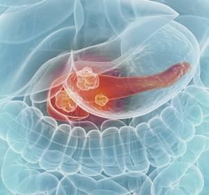Neue Strategien gegen Bauchspeicheldrüsenkrebs