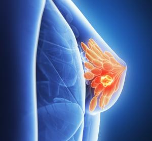 Fortgeschrittener Brustkrebs: Positive CHMP-Empfehlung für Abemaciclib