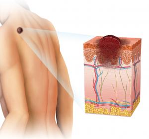 Melanom: Abweichungen im Cholesterinstoffwechsel