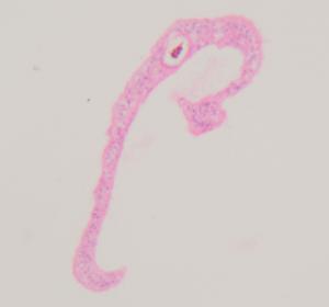 Schistosomiasis: Wie Parasiten Leberkrebs erzeugen