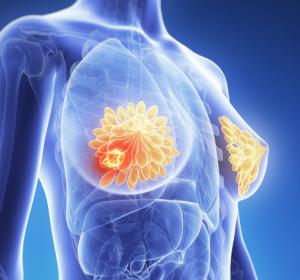 Grundlagen für die maßgeschneiderte Brustkrebstherapie