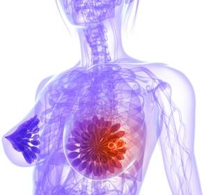 Metastasiertes HER2-negatives Mammakarzinom: Welche Patientin erhält noch eine Chemotherapie?