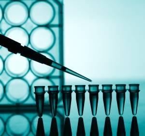 Früher Brustkrebs: MammaTyper-Test als Prädiktor für Ansprechen auf neoadjuvante Chemotherapie validiert