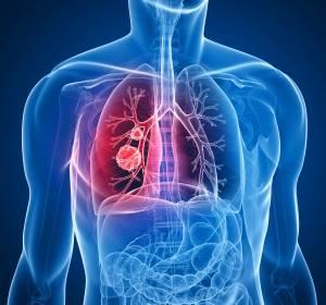 Allianz gegen Lungenkrebs: UCCH und LungenClinic Grosshansdorf bündeln Expertise