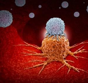 Checkpoint-Inhibition + SBRT bei fortgeschritttenem pankreatischen Adenokarzinom