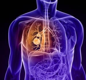 ASCO 2018: Studiendaten zu Immun- und zielgerichteten Therapien beim NSCLC und SCLC
