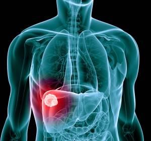 Phase-II-Studie: Perioperative Immuntherapie mit Nivolumab +/- Ipilimumab beim resezierbaren HCC ist sicher