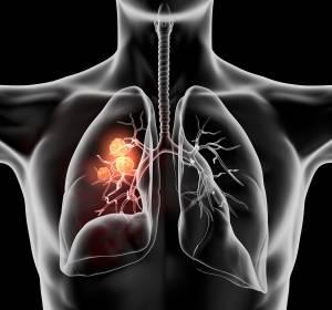 ALK+ NSCLC: Zulassung von Brigatinib verbessert Behandlungssituation