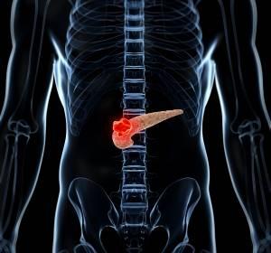 Pankreatologen-Kongress: Neue Erkenntnisse über entzündliche und bösartige Erkrankungen der Bauchspeicheldrüse