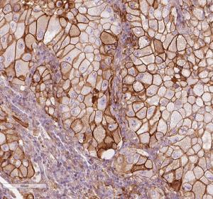 NSCLC: signifikanter Zusammenhang zwischen PD-L1-Expression und Überlebenszeit von Nie-Rauchern