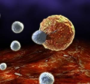 Rezidiviertes oder refraktäres multiples Myelom: CAR-T-Zelltherapie in späteren Therapielinien