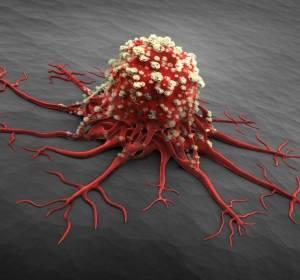 Chronische myeloische Leukämie: Therapie nach Versagen eines Zweitgenerations-TKI
