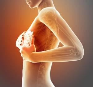 Mammakarzinom: Kurz- oder Einzeitbestrahlung in der Palliativsituation