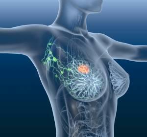 Metastasierendes Mammakarzinom: Mehr Lebenszeit durch stereotaktische Hochpräzisionsbestrahlung