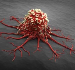 r/r CLL: Überlegenheit der Venetoclax-Rituximab-Therapie gegenüber Standard-Chemoimmuntherapie