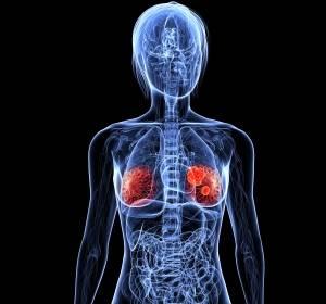 Mammakarzinom: Ribociclib verstärkt endokrine Therapie