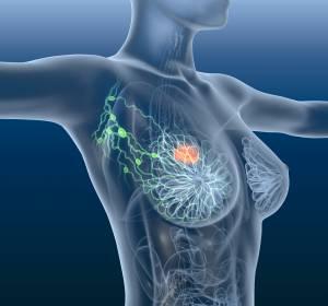 Mammakarzinom: Follow-up-Studie belegt vergleichbares OS für Biosimilar-Arzneimittel Trastuzumab gegenüber Referenzarzneimittel Trastuzumab