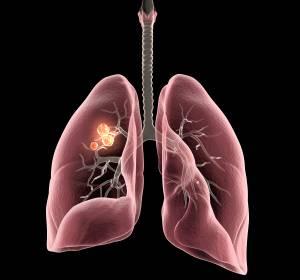 Uroonkologie%3A+Neue+Daten+zu+Checkpoint-Inhibitoren+in+der+Erstlinientherapie+