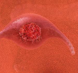 Gebärmutterhalskrebs: Deutliche Senkung der Inzidenz-Raten durch Prävention möglich
