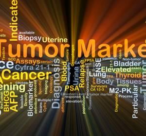 Immuntherapie beim NSCLC: Macht der Biomarker den Unterschied?