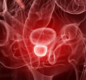 Metastasiertes Prostatakarzinom: Aktuelle Daten bestärken Einsatz von Abirateron