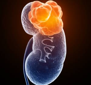 RCC: Kombinationstherapie Avelumab + Axitinib erhält FDA-Zulassung