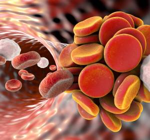 VTE bei Tumorpatienten: DOAK bei stabilen Patienten empfehlenswert