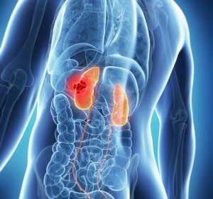 Metastasiertes klarzelliges RCC: Frontline-Therapie mit Pembrolizumab + Axitinib verbessert Überleben gegenüber Sunitinib auch bei intermediärem/ungünstigem Risikoprofil und Tumoren mit sarkomatoiden Anteilen