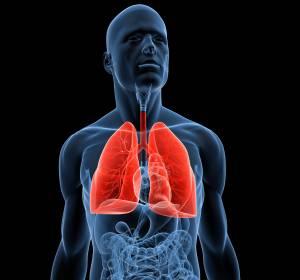 NSCLC: Längeres PFS unter Alectinib als unter Crizotinib