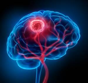 Hirnmetastasen: Verkürzte Behandlungszeit durch neue Hochpräzisionsbestrahlung