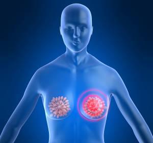 Mammakarzinom im Frühstadium: Genexpressionstest zur Entscheidung pro/contra Chemotherapie erstattungsfähig