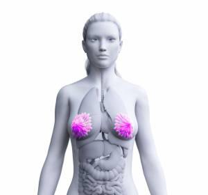 Mammakarzinom im Frühstadium: Test gibt Aufschluss über Erfolg einer Chemotherapie