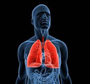 NSCLC: Optionen nach Versagen der Immuntherapie in der Erstlinie
