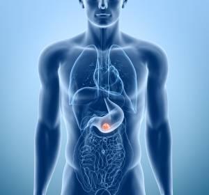 Adenokarzinom von Magen und gastroösophagealem Übergang: Ramucirumab als Mono- und Kombinationstherapie effektive Zweitlinienoption
