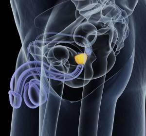 mCRPC: Weiterbehandlung mit Cabazitaxel nach Chemotherapie-Indikation ist Docetaxel-Reinduktion vorzuziehen