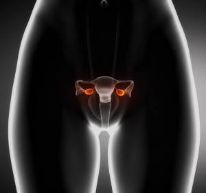 Ovarialkarzinom: Intensive Forschung zu Resistenzen