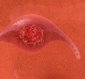 Fortgeschrittenes Zervixkarzinom: Radiochemotherapie bleibt Therapiestandard