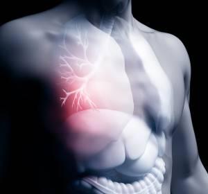 IMpower133-Studie%3A+%C3%9Cberlebensvorteil+durch+Zugabe+von+Atezolizumab+zu+Carboplatin%2FEtoposid+beim+fortgeschrittenen+SCLC+best%C3%A4tigt+sich