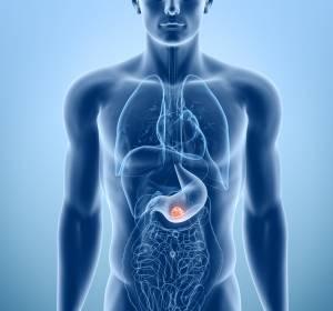 Tumoren+im+Magen-Darm-Trakt%3A+Operationserfolg+in+spezialisierten+Kliniken+deutlich+gr%C3%B6%C3%9Fer+