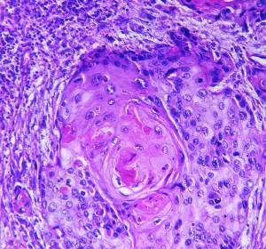 cSCC: Anhaltende Tumorkontrolle unter Cemiplimab